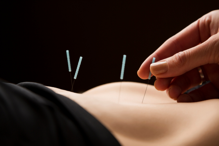 Slimming Through Acupuncture